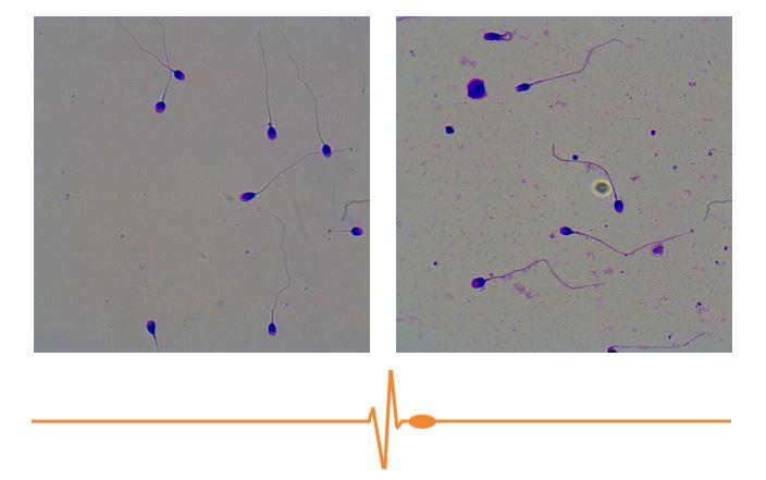 evaluar la morfología de los espermatozoides